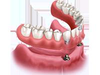 denturestabilization2