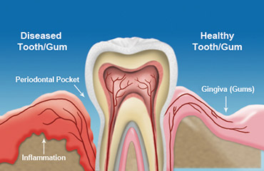 Illustration of gum disease