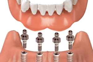 implantsupporteddentureslarge