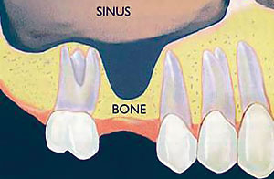 sinus-lift1