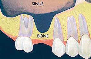 sinus-lift1