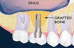 sinus-lift2